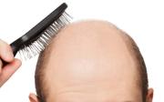 Vypadávání vlasů atestosteron