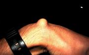 Výrůstek na zápěstí je ganglion