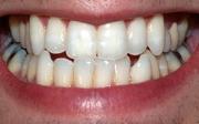Citlivost zubů