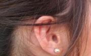 Zalehlé ucho